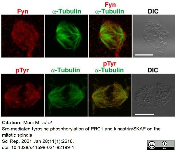 Anti Tubulin Alpha Antibody, clone YOL1/34 thumbnail image 17