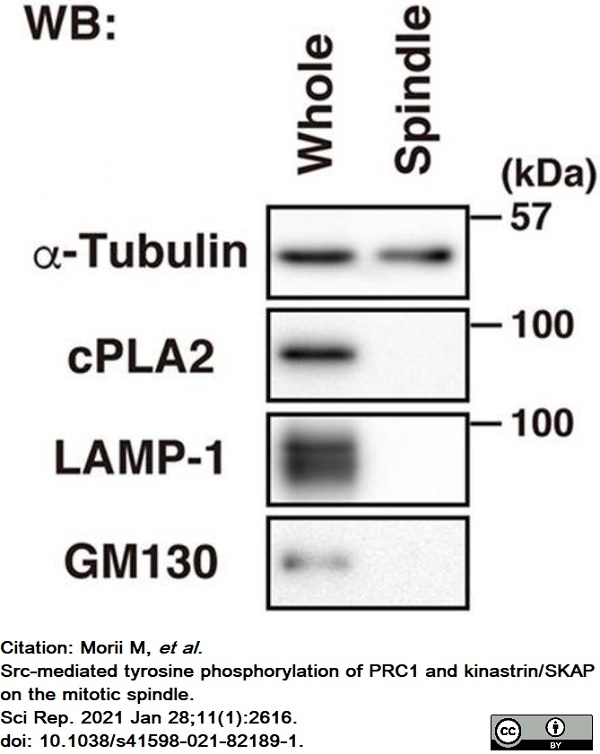 Anti Tubulin Alpha Antibody, clone YOL1/34 thumbnail image 18