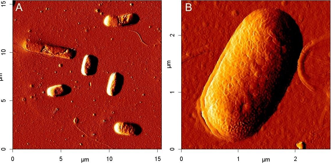 Anti Escherichia coli Antibody thumbnail image 1