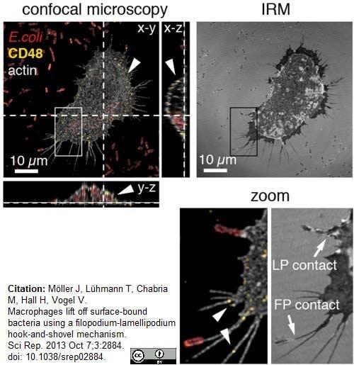 Anti Escherichia coli Antibody thumbnail image 3