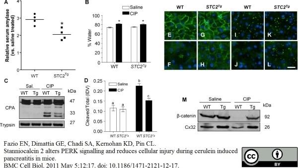 Anti Bovine Carboxypeptidase A1 Antibody thumbnail image 1