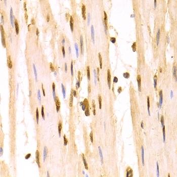 Anti 14-3-3 Sigma Antibody thumbnail image 8