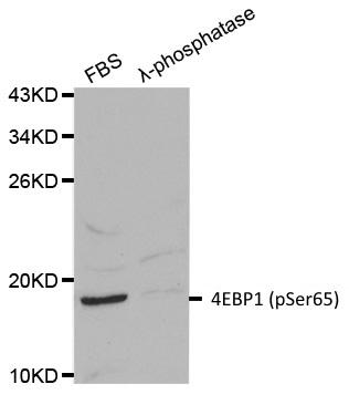 Anti 4EBP1 (pSer65) Antibody gallery image 1