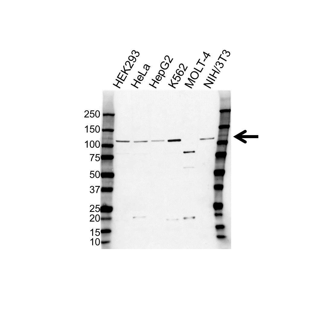 Anti ABCF1 Antibody (PrecisionAb Polyclonal Antibody) gallery image 1