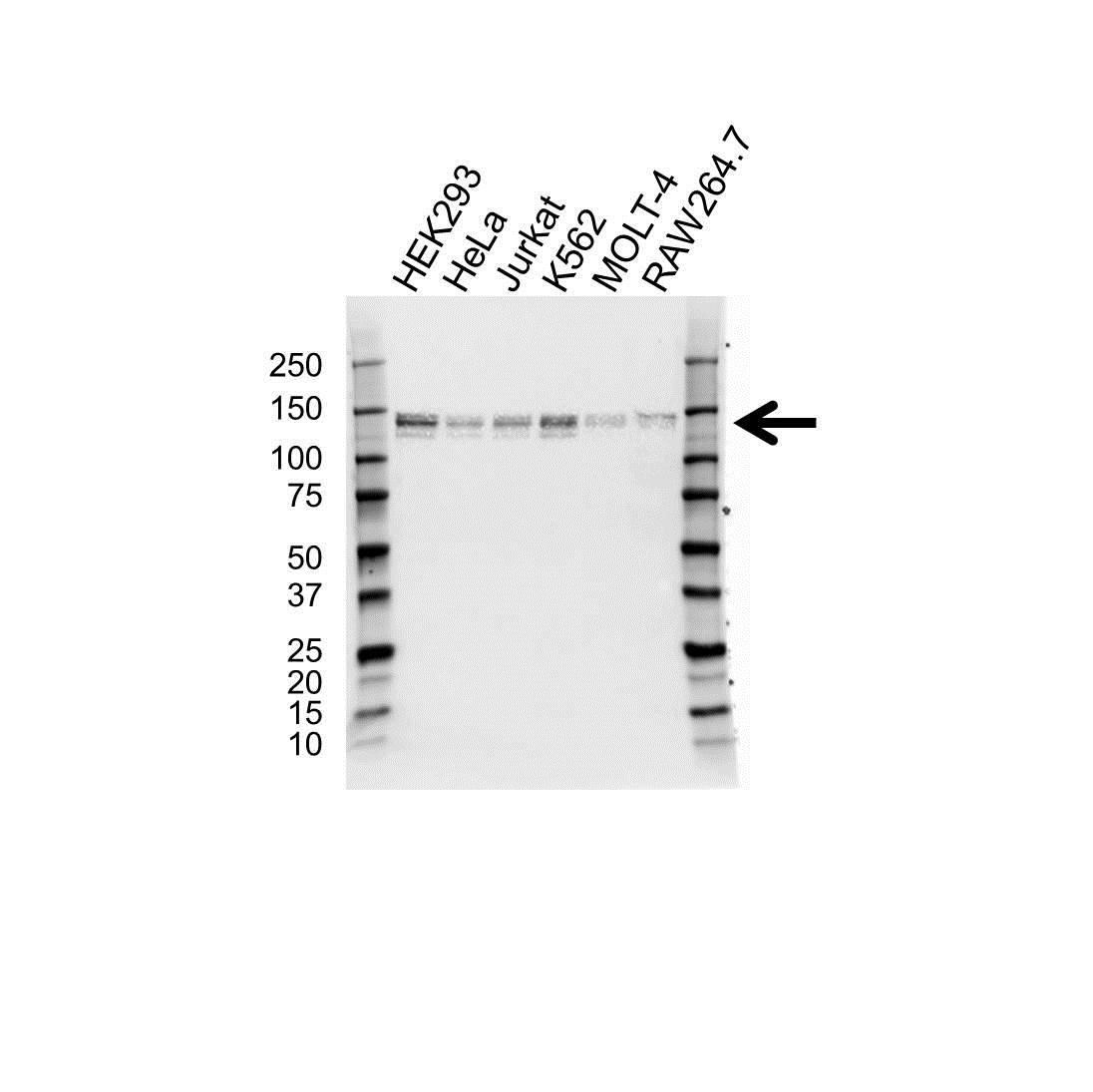 Anti ABL2 Antibody (PrecisionAb Polyclonal Antibody) gallery image 1