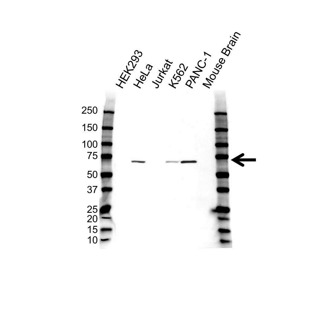 Anti ACVR2B Antibody (PrecisionAb Polyclonal Antibody) gallery image 1