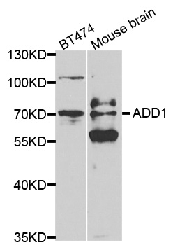 Anti ADD1 Antibody thumbnail image 1