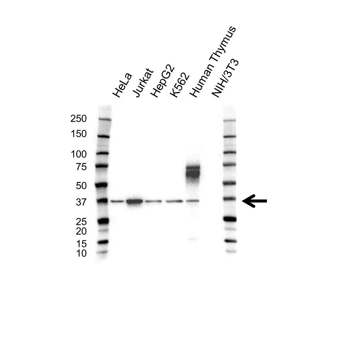 Anti Aip Antibody (PrecisionAb™ Polyclonal Antibody) gallery image 1