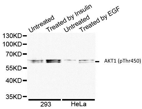 Anti AKT1 (pThr450) Antibody gallery image 1