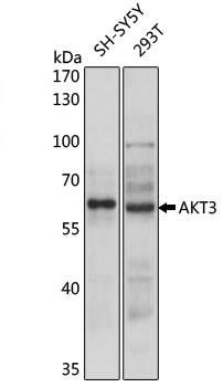 Anti AKT3 Antibody gallery image 1