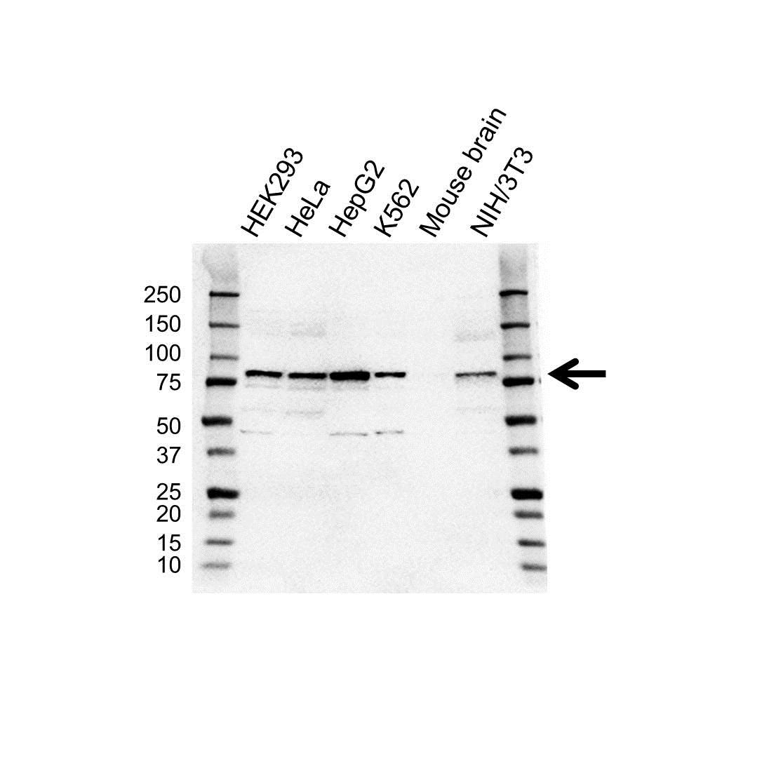Anti ALDH18A1 Antibody (PrecisionAb™ Polyclonal Antibody) gallery image 1
