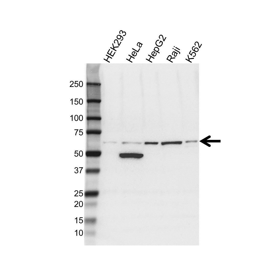 Anti ALDH1B1 Antibody (PrecisionAb™ Polyclonal Antibody) gallery image 1