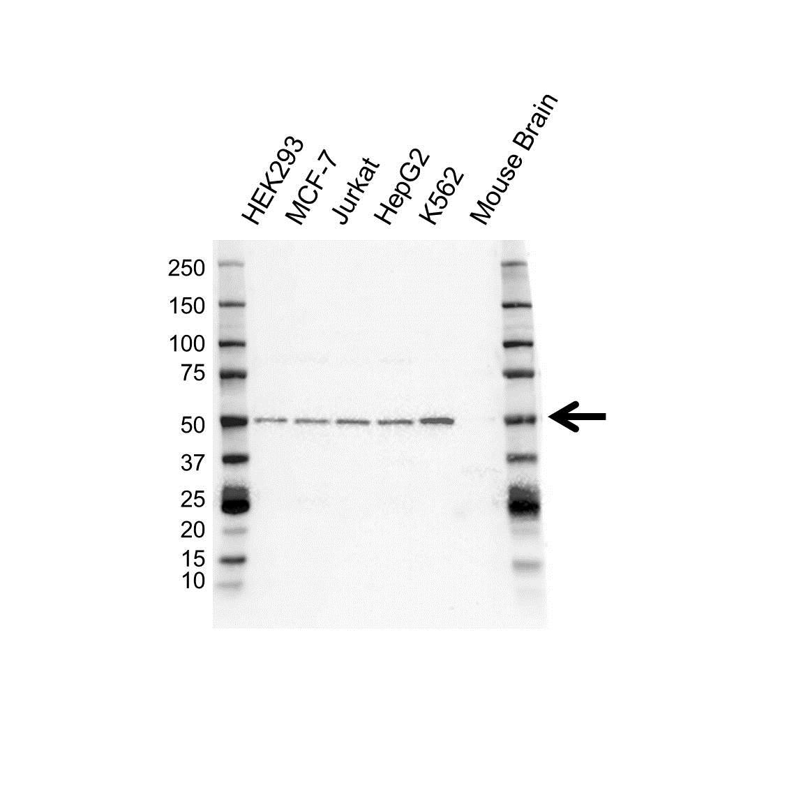 Anti ALK1 Antibody (PrecisionAb™ Polyclonal Antibody) gallery image 1