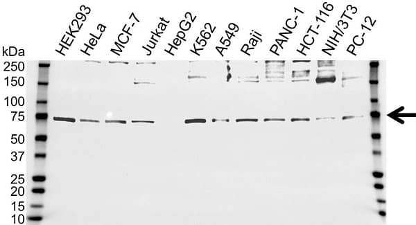 Anti ALOX15 Antibody (PrecisionAb Polyclonal Antibody) gallery image 1