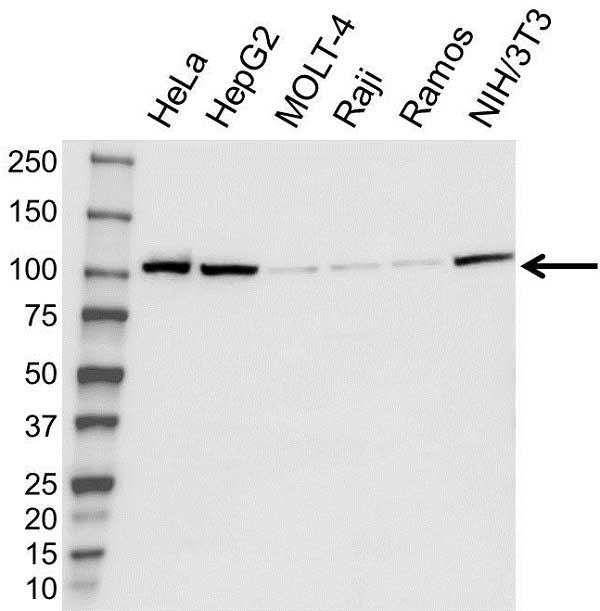 Anti Alpha ACTININ-1 Antibody (PrecisionAb Polyclonal Antibody) gallery image 1