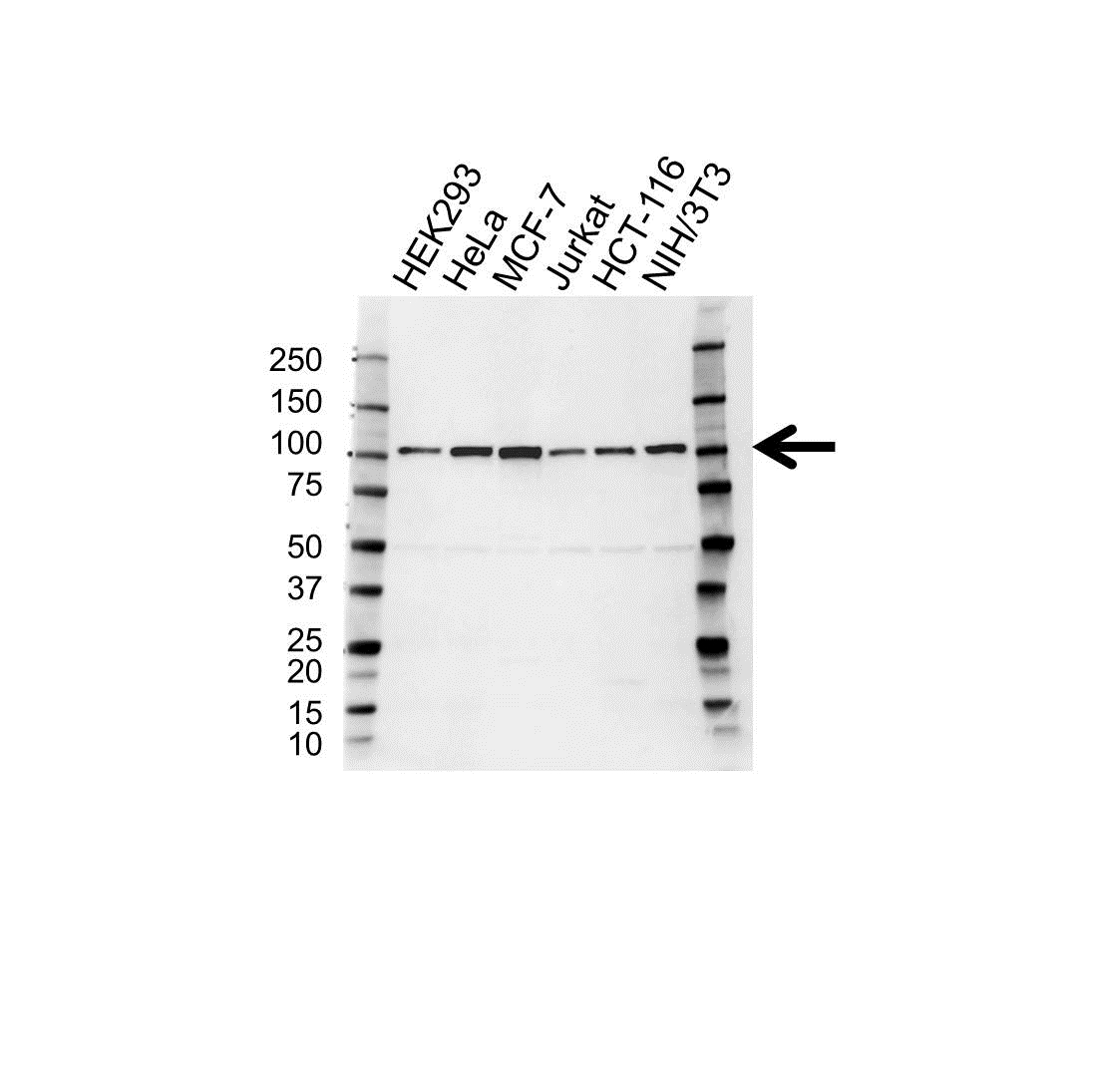 Anti Alpha Actinin 4 Antibody (PrecisionAb Polyclonal Antibody) gallery image 1