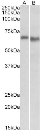 Anti Human AMPK Alpha 2 Antibody thumbnail image 2