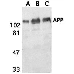 Anti Amyloid Precursor Protein (aa672-681) Antibody thumbnail image 1