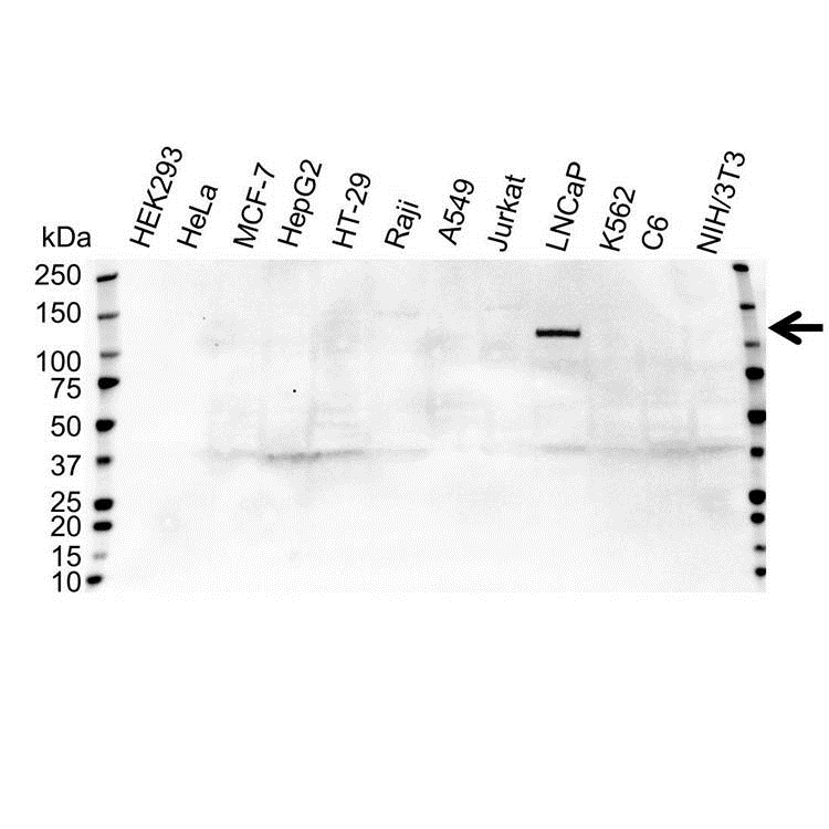 Anti Androgen Receptor Antibody (PrecisionAb™ Polyclonal Antibody) gallery image 1