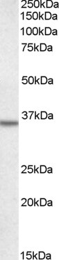 Anti Human Annexin II (N-Terminal) Antibody gallery image 1