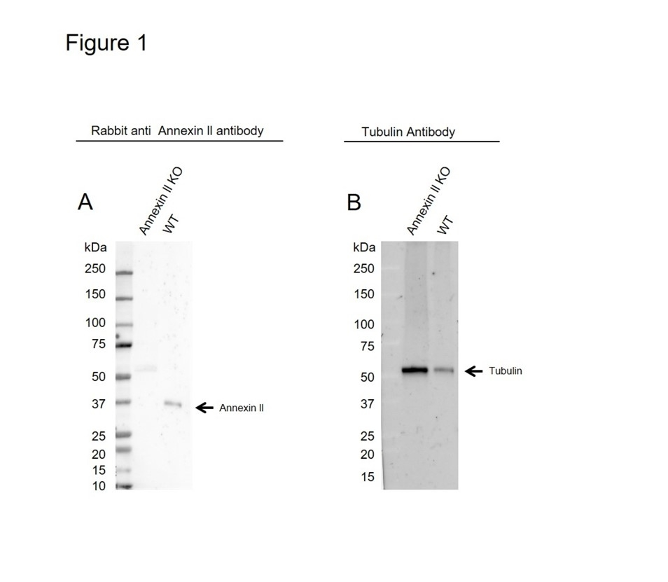 Anti Annexin II Antibody (PrecisionAb Polyclonal Antibody) thumbnail image 2