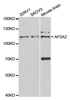 Anti AP2A2 Antibody thumbnail image 1