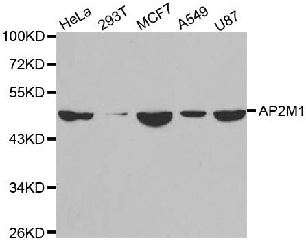 Anti AP2M1 Antibody gallery image 1