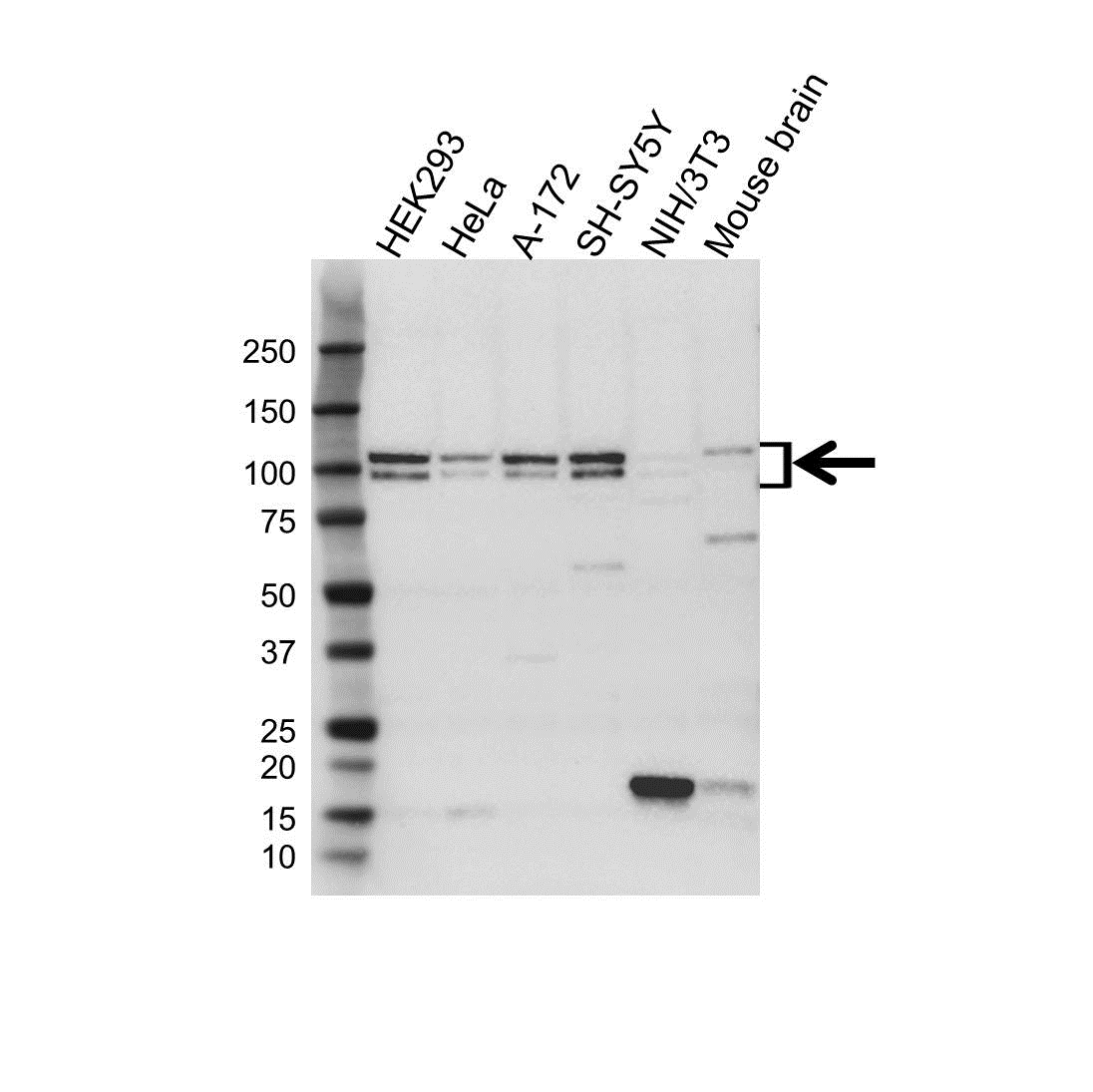 Anti APBB1 Antibody (PrecisionAb™ Polyclonal Antibody) gallery image 1