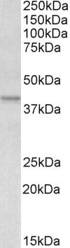 Anti Human Apolipoprotein L1 (C-Terminal) Antibody thumbnail image 1