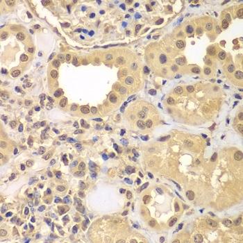 Anti ARNT2 Antibody thumbnail image 2