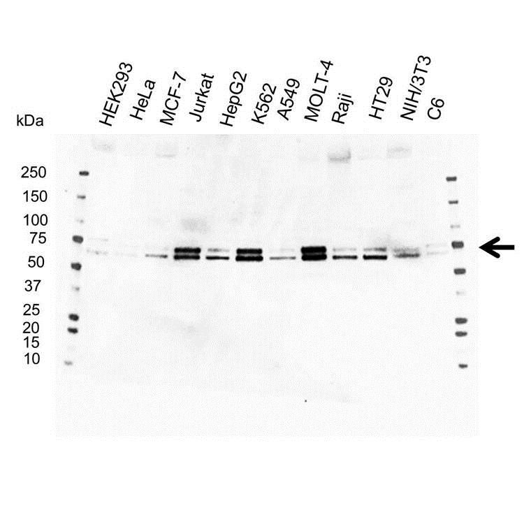 Anti ATF2 Antibody (PrecisionAb Polyclonal Antibody) gallery image 1