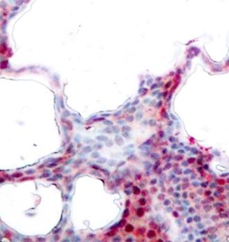 Anti ATF2 (pSer44/pSer62) Antibody thumbnail image 2