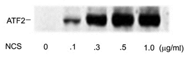 Anti ATF2 (pSer490/pSer498) Antibody gallery image 1