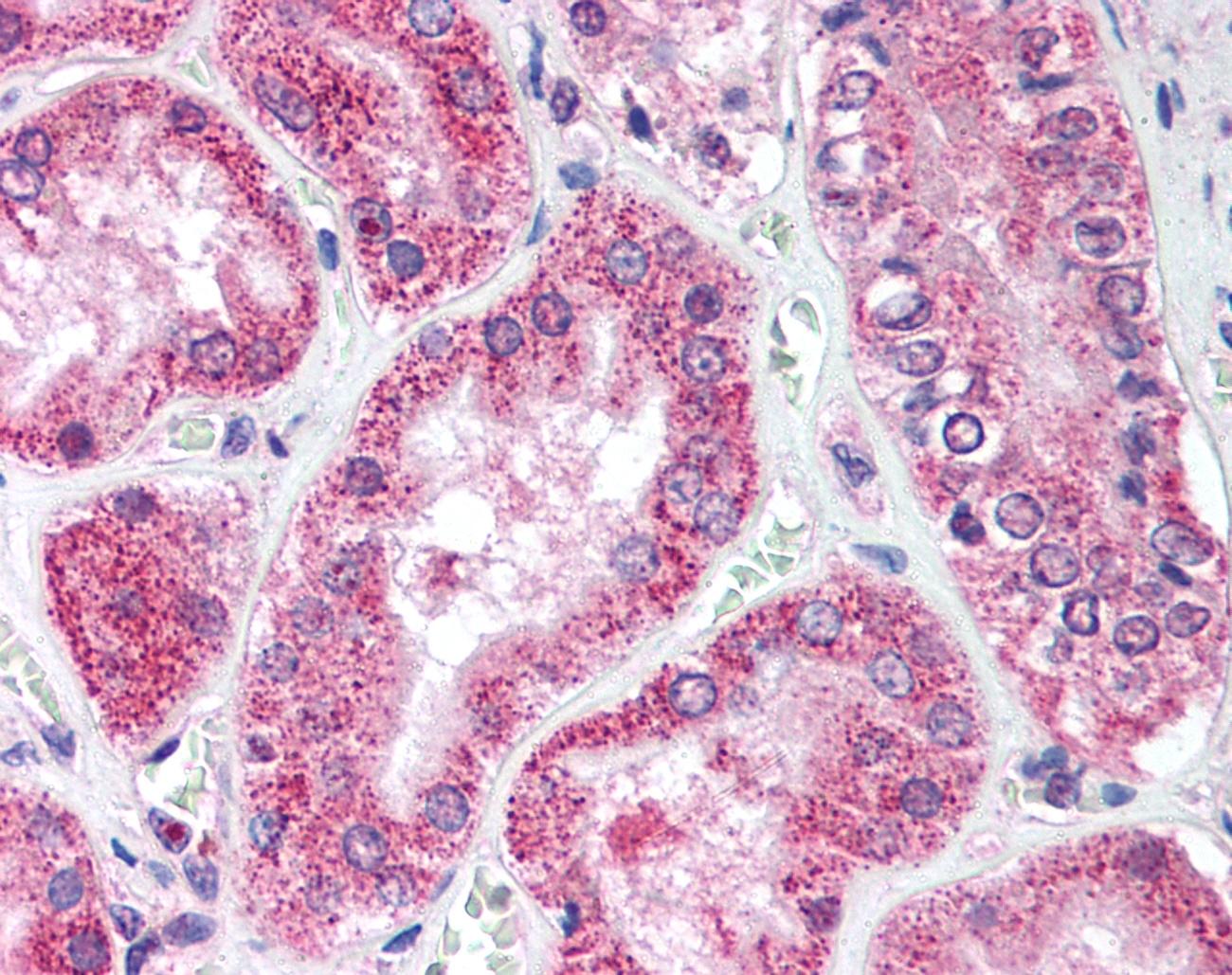 Anti ATG1 Antibody gallery image 1