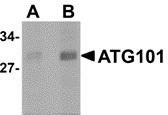 Anti ATG101 Antibody thumbnail image 1