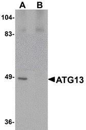 Anti ATG13 Antibody thumbnail image 2