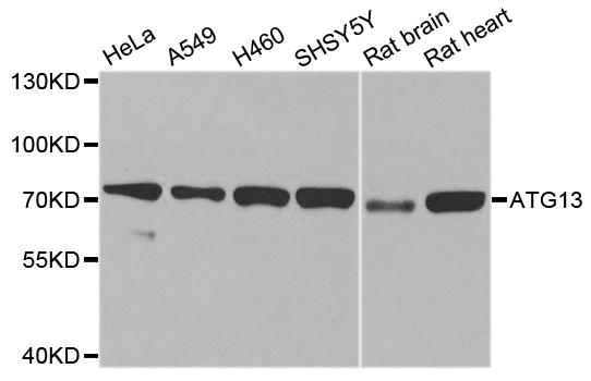 Anti ATG13 Antibody gallery image 1