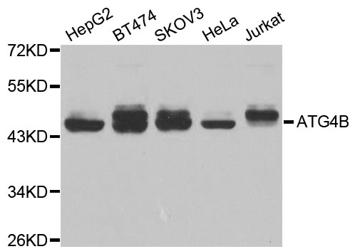 Anti ATG4B Antibody gallery image 1