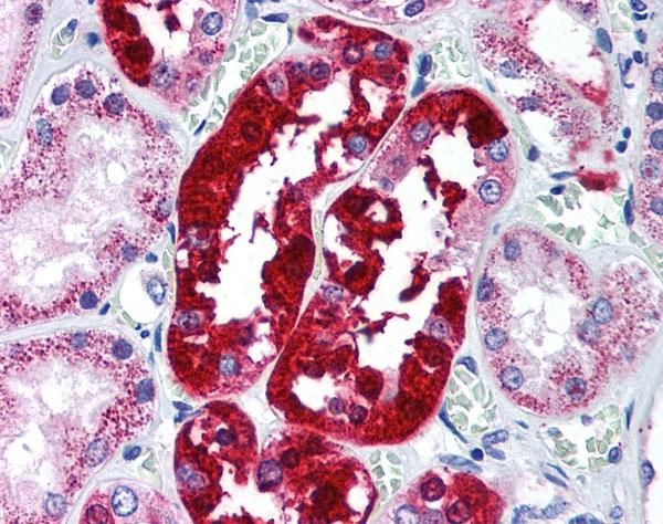 Anti ATG5 Antibody gallery image 1