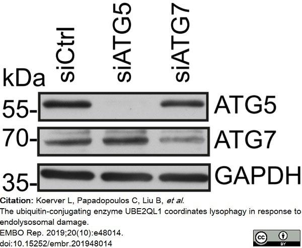 Anti Human ATG7 (C-Terminal) Antibody thumbnail image 3