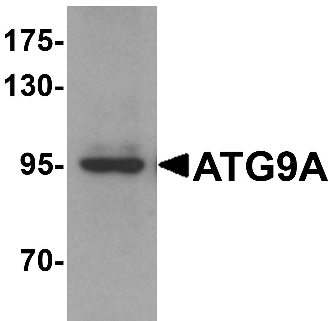 Anti ATG9A Antibody gallery image 1