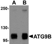 Anti ATG9B Antibody thumbnail image 1