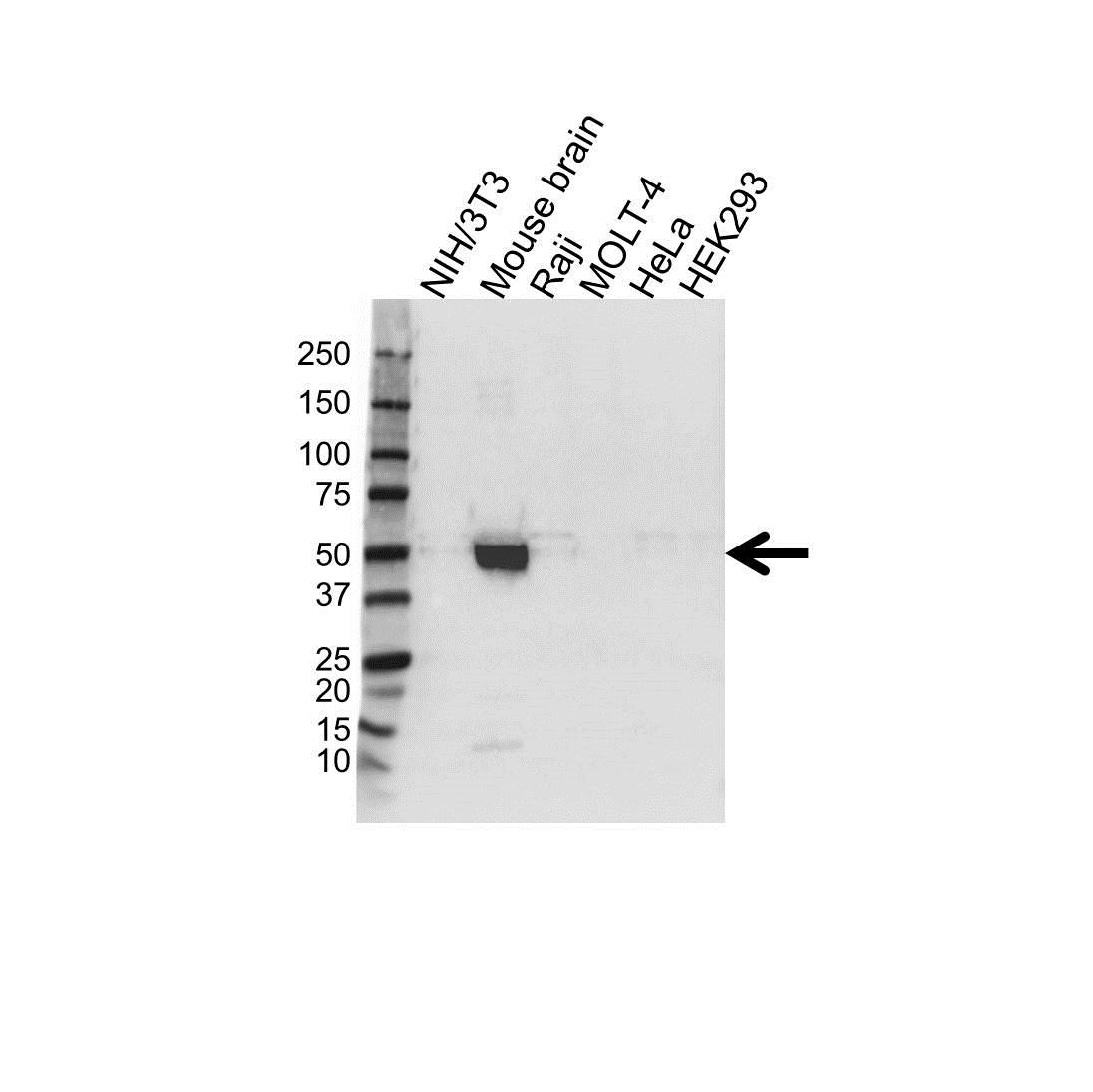 Anti ATP1B1 Antibody (PrecisionAb™ Polyclonal Antibody) gallery image 1