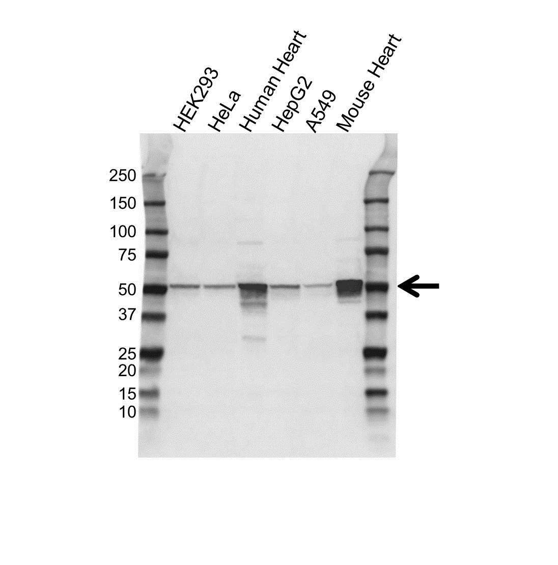 Anti ATP5A1 Antibody (PrecisionAb Polyclonal Antibody) gallery image 1