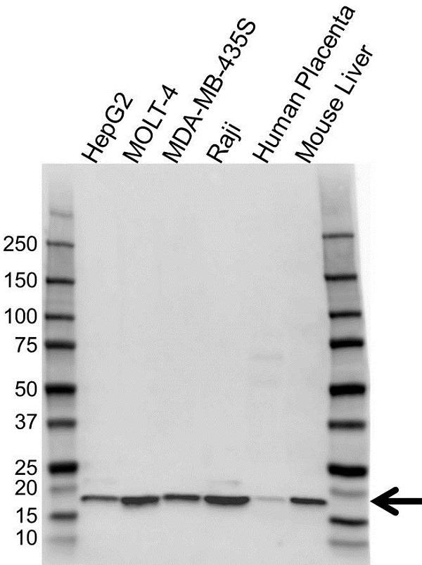 Anti ATP5D Antibody (PrecisionAb Polyclonal Antibody) gallery image 1