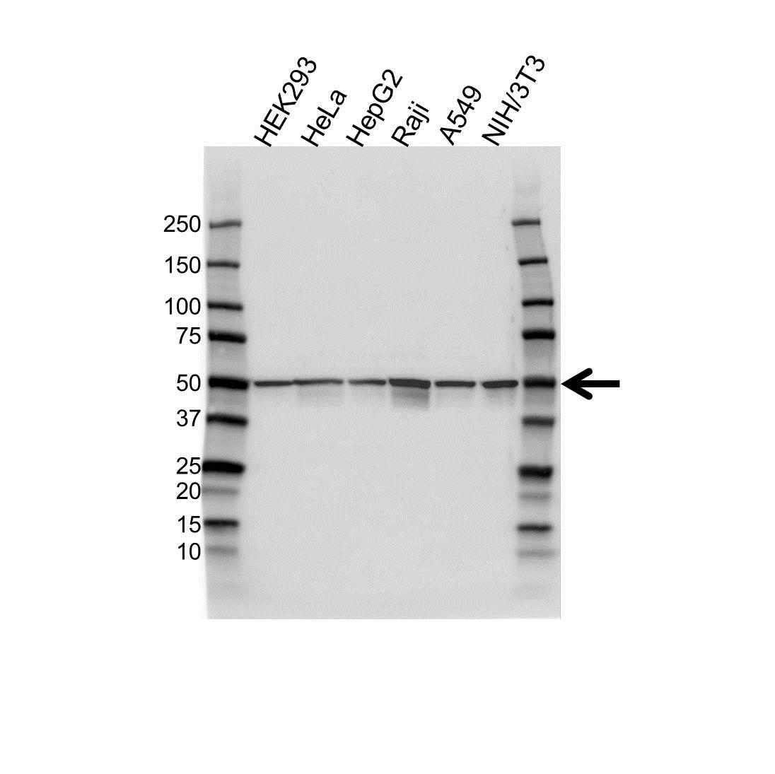Anti Aurora-A Kinase Antibody (PrecisionAb Polyclonal Antibody) gallery image 1