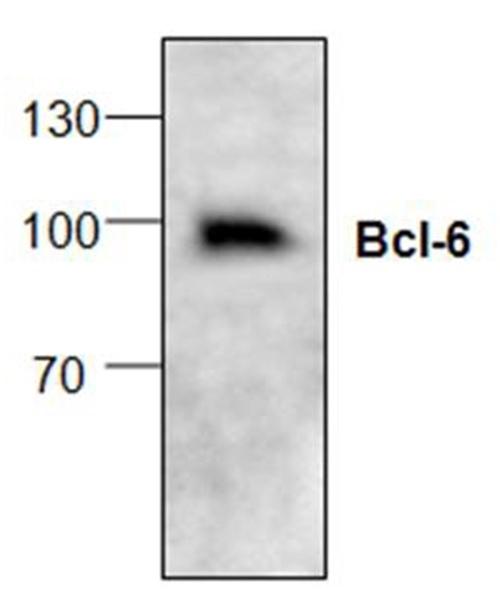 Anti Bcl-6 Antibody gallery image 1