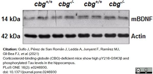 Anti BDNF Antibody (PrecisionAb Polyclonal Antibody) thumbnail image 2