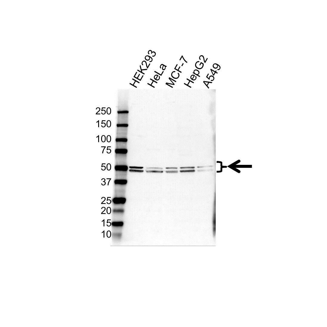 Anti BETA-1 Adrenergic Receptor Antibody (PrecisionAb Polyclonal Antibody) gallery image 1