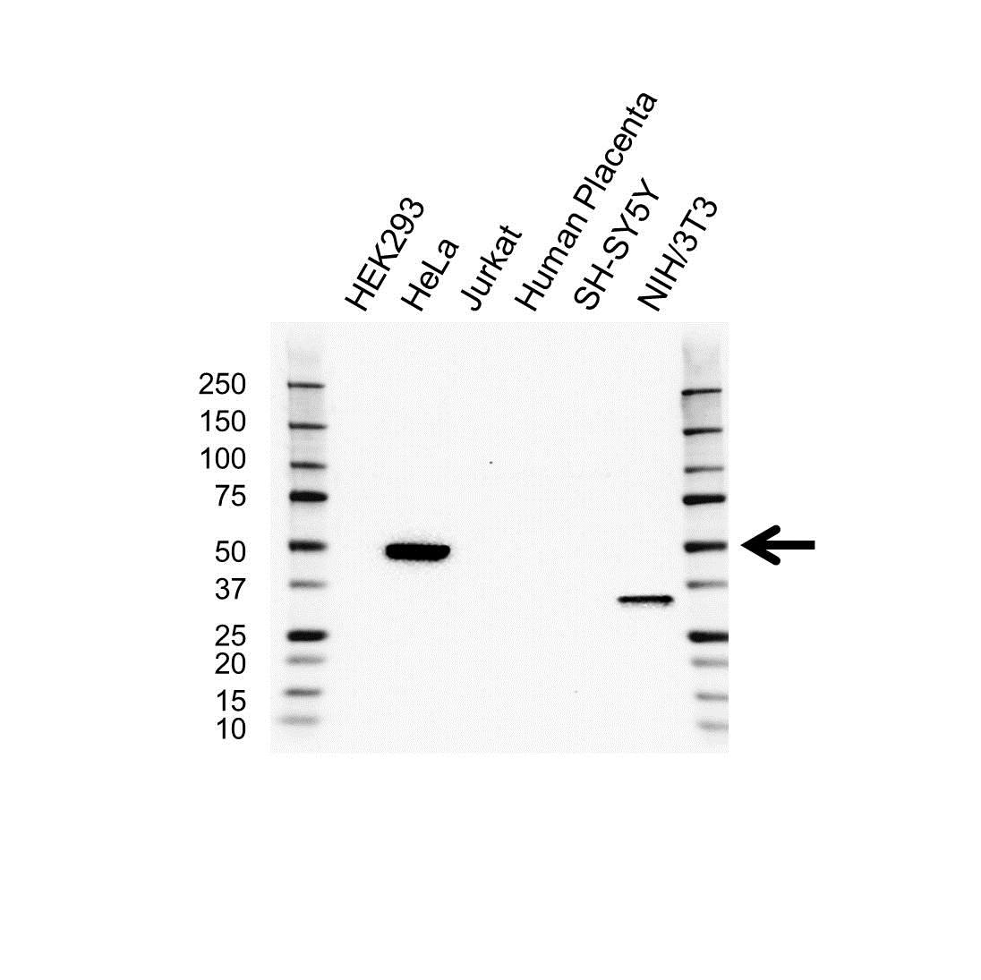 Anti Beta Arrestin-2 Antibody (PrecisionAb Polyclonal Antibody) gallery image 1